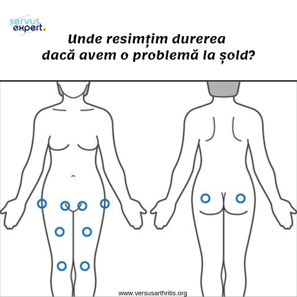 exerciții de durere în articulațiile șoldului masaj pentru durere în articulațiile degetelor