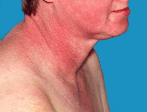 tratamentul cu artroză a injecțiilor cu acid hialuronic
