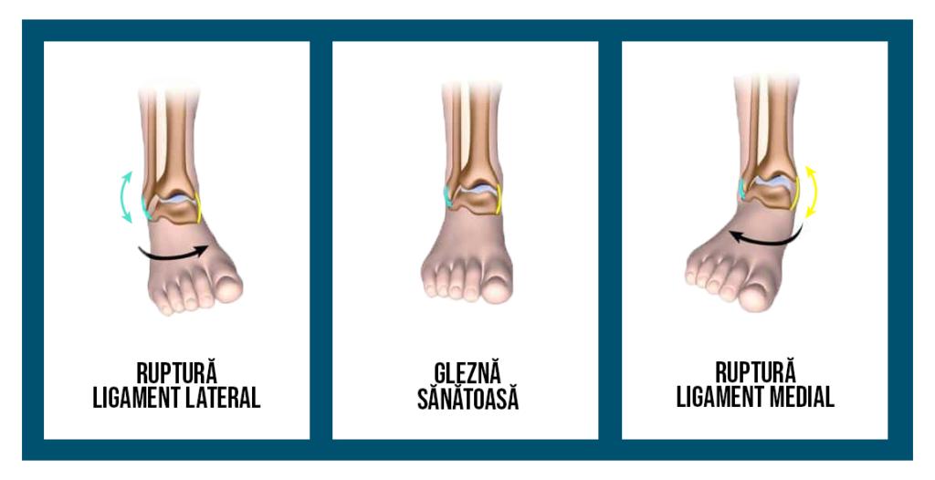 acțiuni pentru vătămarea gleznei dureri de genunchi alergător