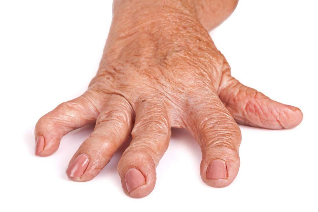 agravarea artritei decât a trata