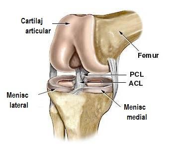 articulația artificială a genunchiului este