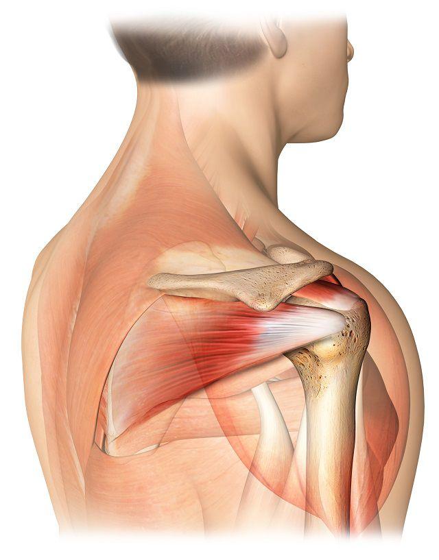 ce poate răni în articulația umărului refacerea mobilității în articulația șoldului
