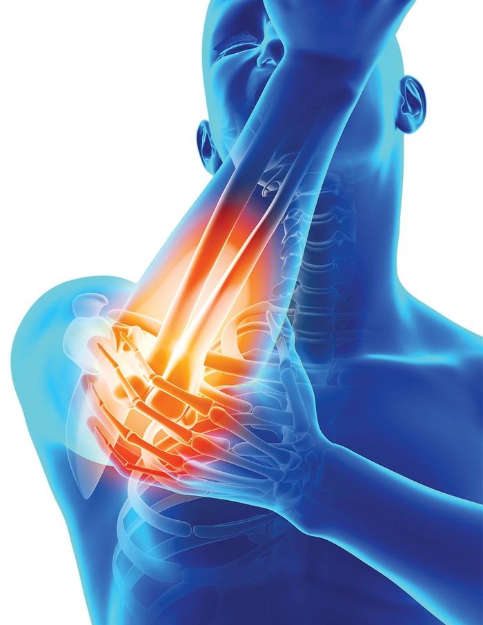 exacerbarea artritei cronice a genunchiului dureri articulare zburătoare