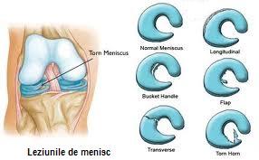 luxația articulației cotului cum să tratezi articulația doare de la sfoară