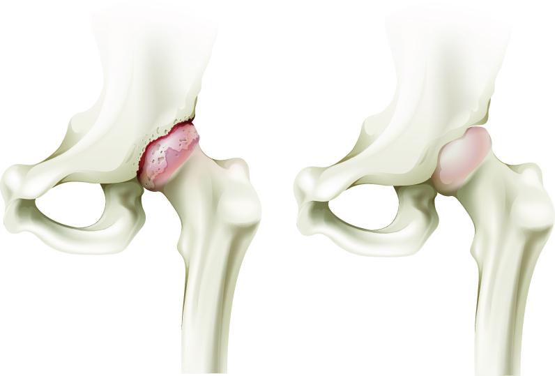 coxartroza articulațiilor șoldului tratament de 3 grade