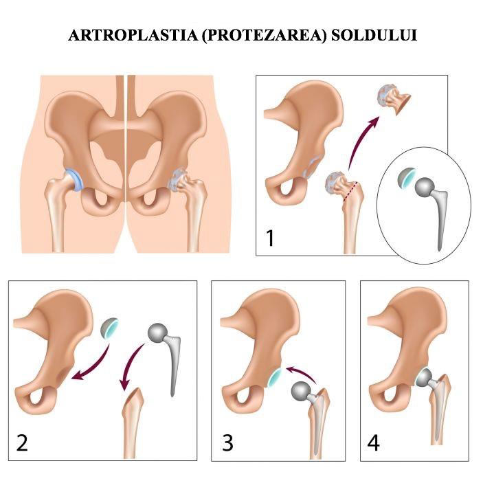 coxartroza tratamentului de gradul I al articulației șoldului artrita sau artroza mâinilor