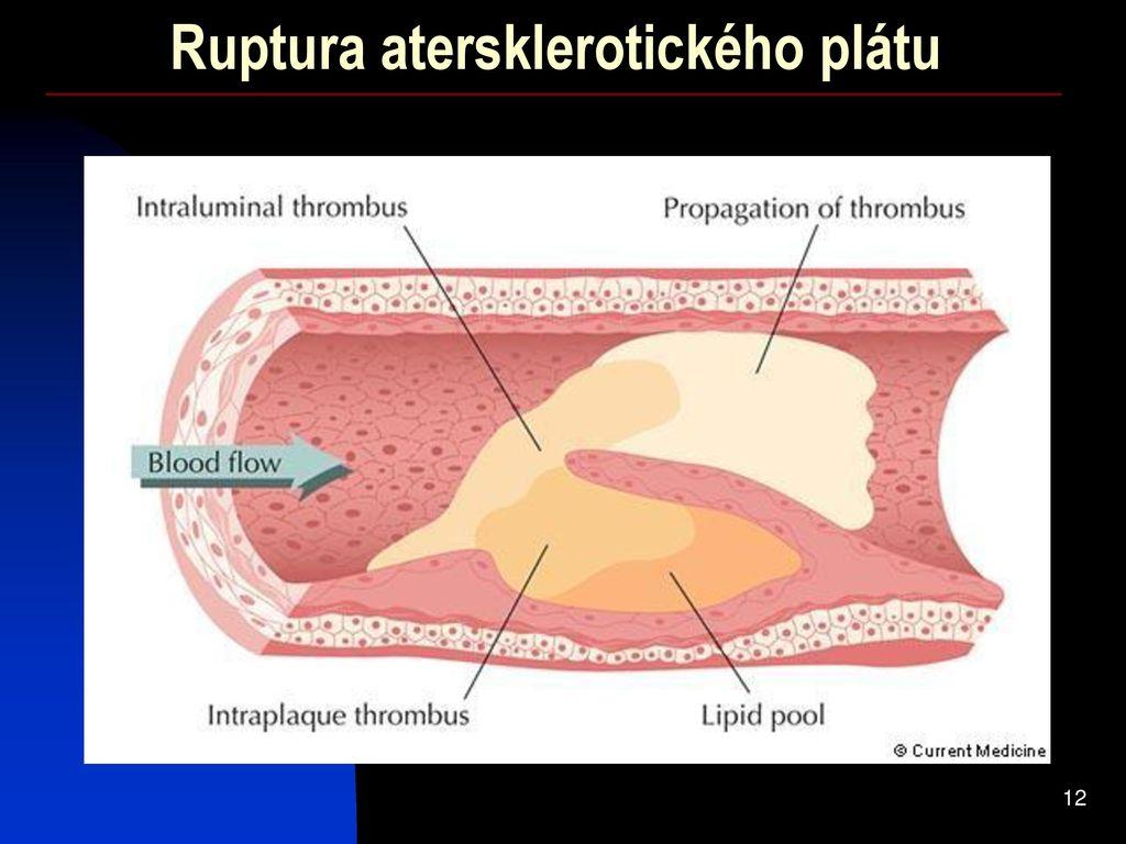 sportivi dureri de șold furnicile pentru tratamentul articular