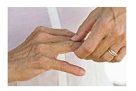 artrita seronegativă cum să tratezi