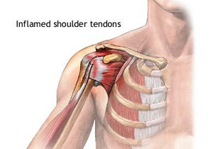 schema de tratament pentru artroza extremităților inferioare medicamente pentru tratamentul coxartrozei articulației șoldului