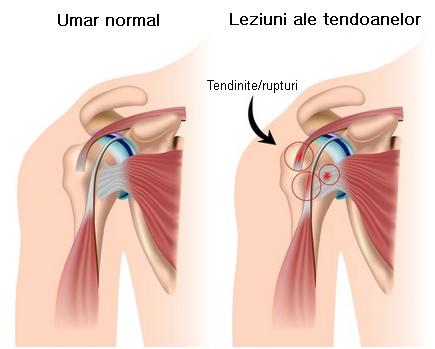durere în articulația umărului drept