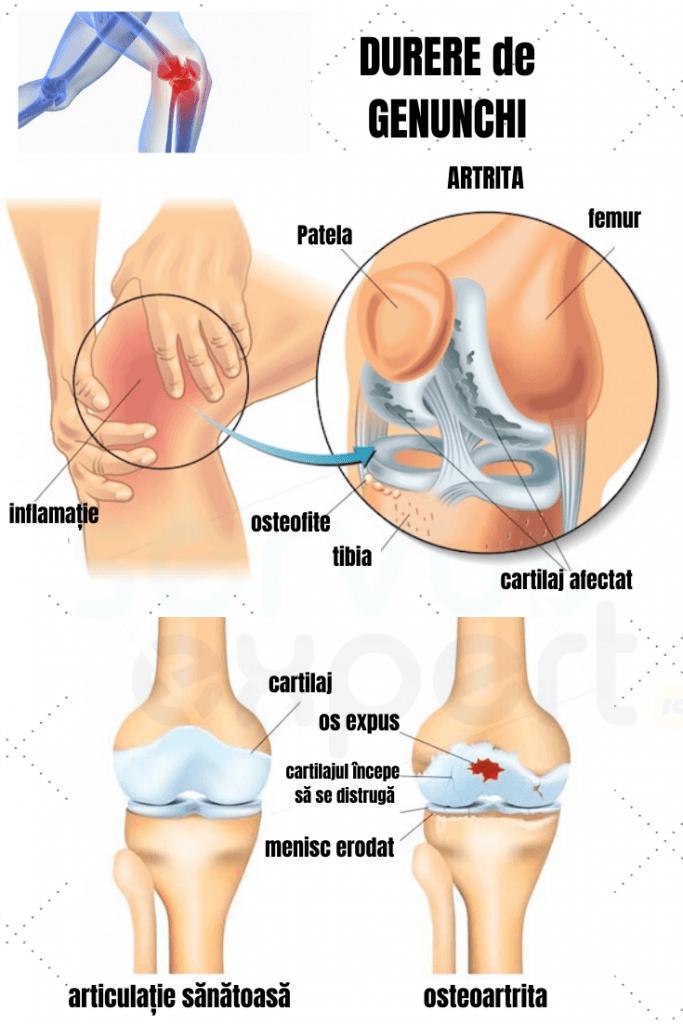 Articulația genunchiului iese