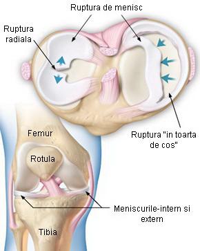 deteriorarea meniscului posterior al genunchiului tratamentul rupturii tendonului mușchiului supraspinat al articulației umărului