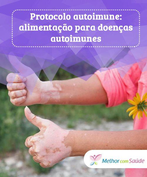 tratamentul și nutriția artritei și a artrozei