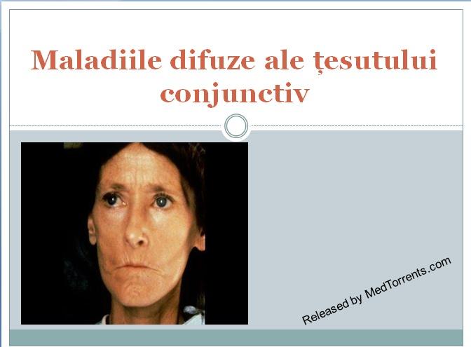 displazie de boală a țesutului conjunctiv Tratamentul comun al Sloveniei