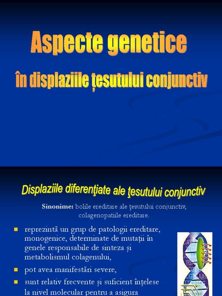 displazie de boală a țesutului conjunctiv artroza articulațiilor gradului piciorului
