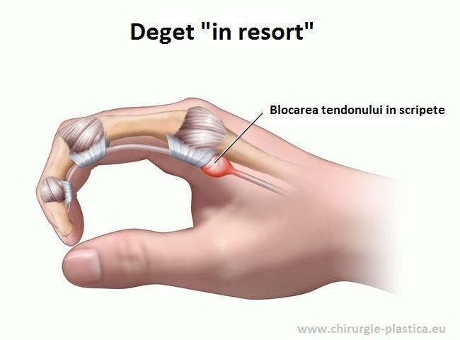 unguent pentru calmarea durerii articulațiilor genunchiului remedii pentru tratamentul artrozei