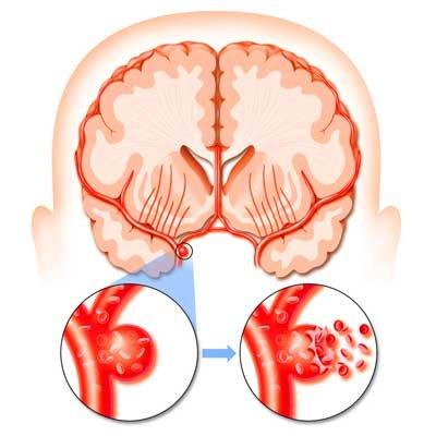dureri articulare cu un accident vascular cerebral