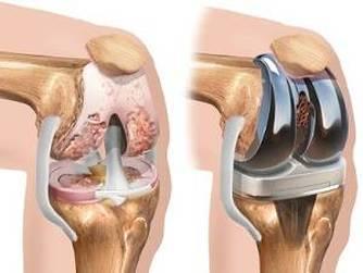 dureri la endoproteza genunchiului tratament muzical sacru articulații pierdere în greutate