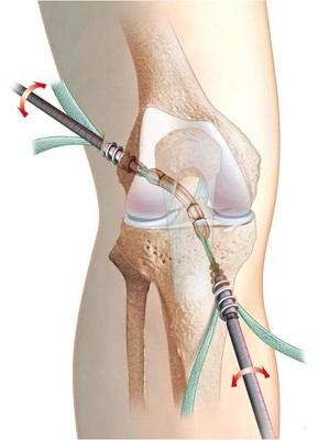 recuperare după laparoscopia genunchiului dureri articulare de volei