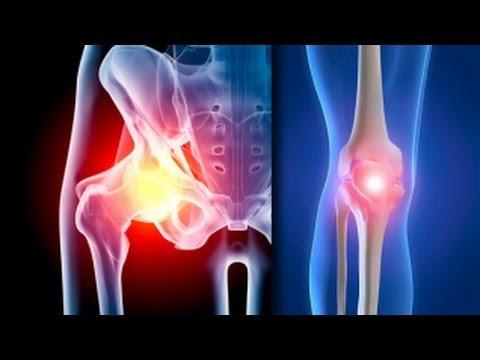 articulațiile șoldului cu întindere dureri de glezna la mers
