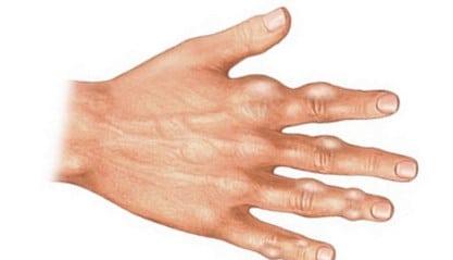Sunt tratabile pentru artroză