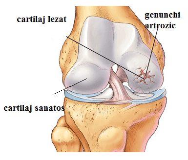gonartroza afectării genunchiului