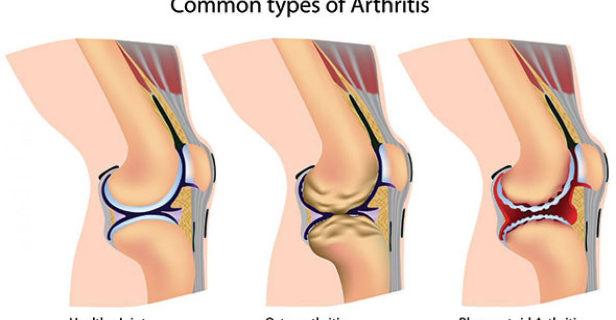 gonartroza genunchiului tratamentului de gradul doi unguent din umflarea articulațiilor picioarelor