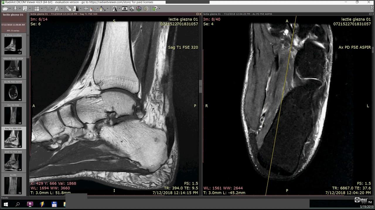 dureri articulare după 45 de ani