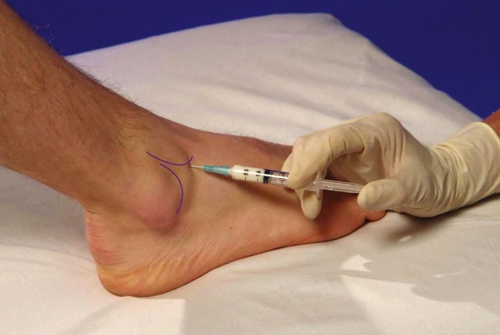injectarea medicamentului în articulația gleznei