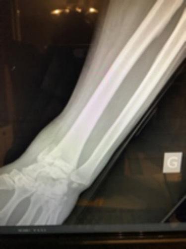 ce să faci atunci când articulația genunchiului doare dureri de genunchi după 30
