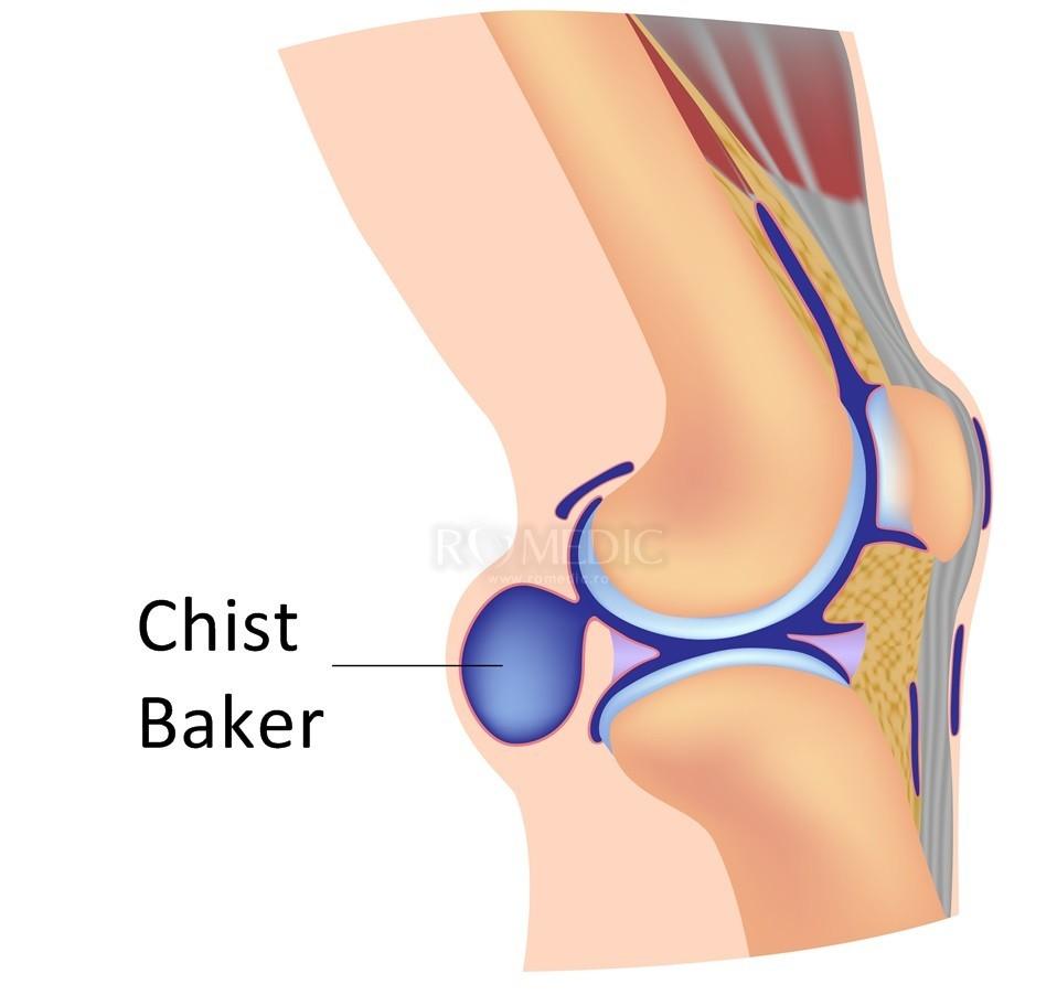 mersul genunchiului cu boală articulară durere și furnicături în genunchi