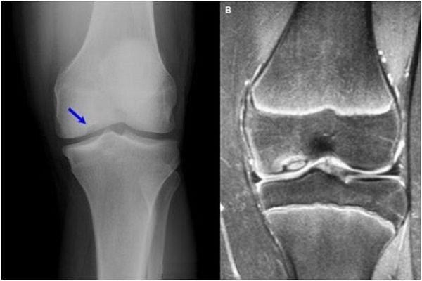 modificări degenerative-distrofice în tratamentul articulației genunchiului ce sunt unguente bune pentru articulații