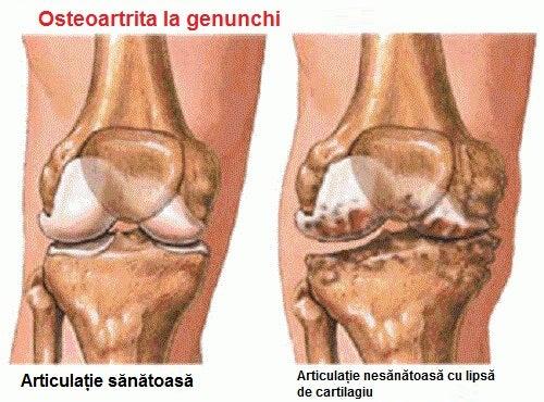 modul de prevenire a artritei articulare boli severe ale articulațiilor genunchiului