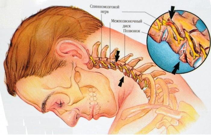 osteocondroza este cel mai bun remediu sindromul leziunilor la încheietura mâinii