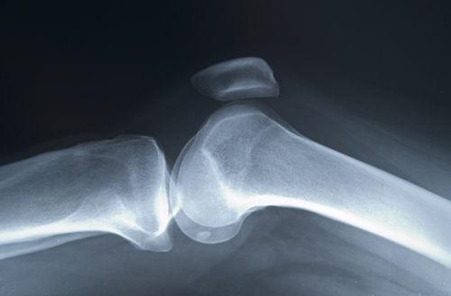 osteoporoza bolii osoase este posibil să se trateze articulațiile genunchiului