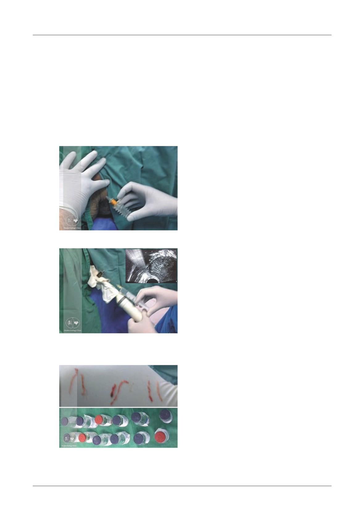 Artroza oprește injecțiile - Tratamentul articulațiilor la genunchi Elbon