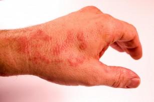 primul ajutor de rănire la încheietura mâinii