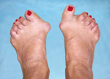 dureri articulare ale degetelor mari dureri articulare și umflarea membrelor