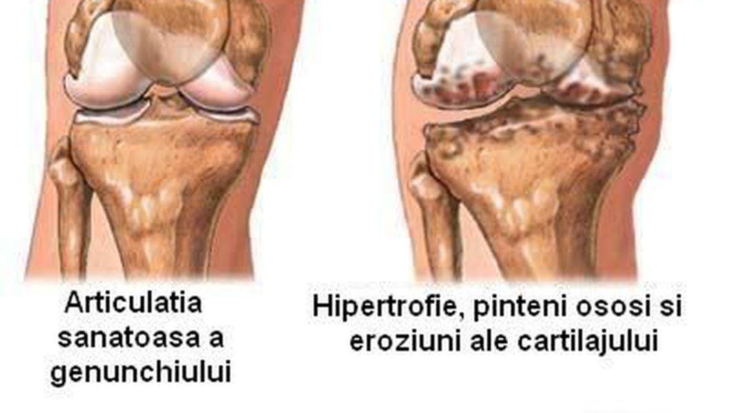 tratament bioptron la genunchi ligamentul cruciat anterior al articulației genunchiului