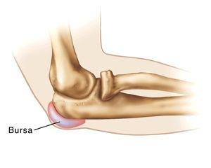 creșterea durerii articulare a ESR