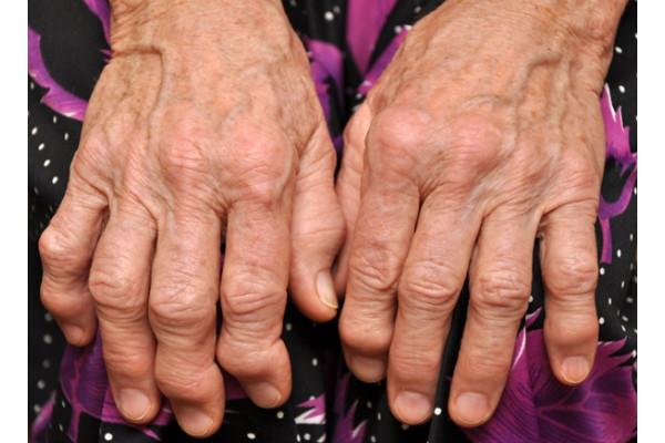 tratamentul artrozei degetelor și mâinilor medicamente pentru a îmbunătăți lubrifierea articulațiilor genunchiului