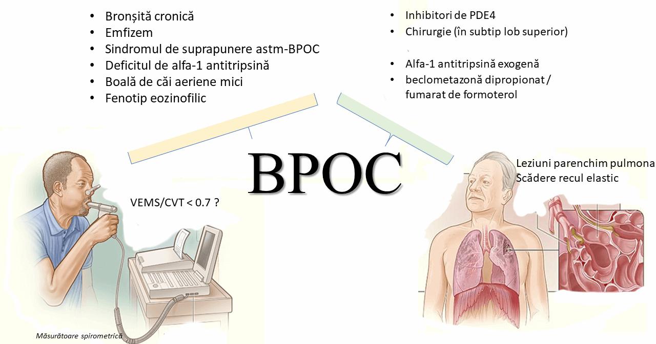 tratamentul bronhiilor și articulațiilor