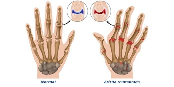 tratamentul mâinilor cu artrita reumatoidă
