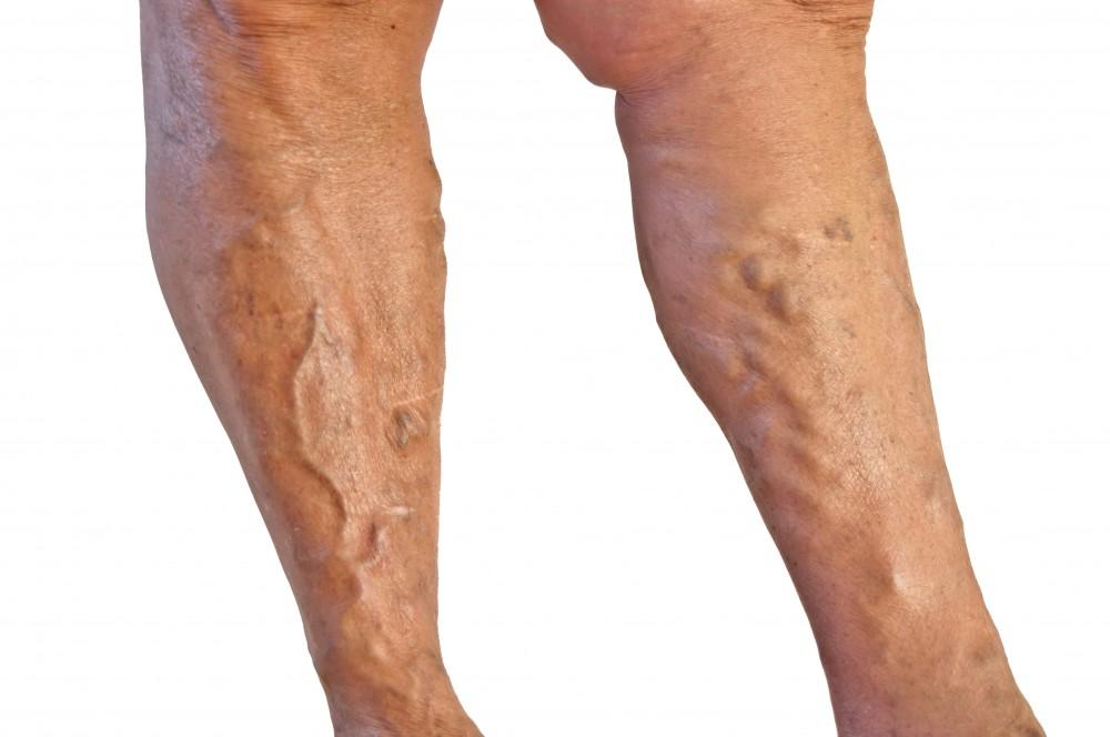 durere în articulațiile artritei mâinilor