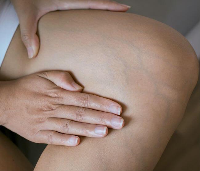 poate răni articulațiile din pastile hormonale