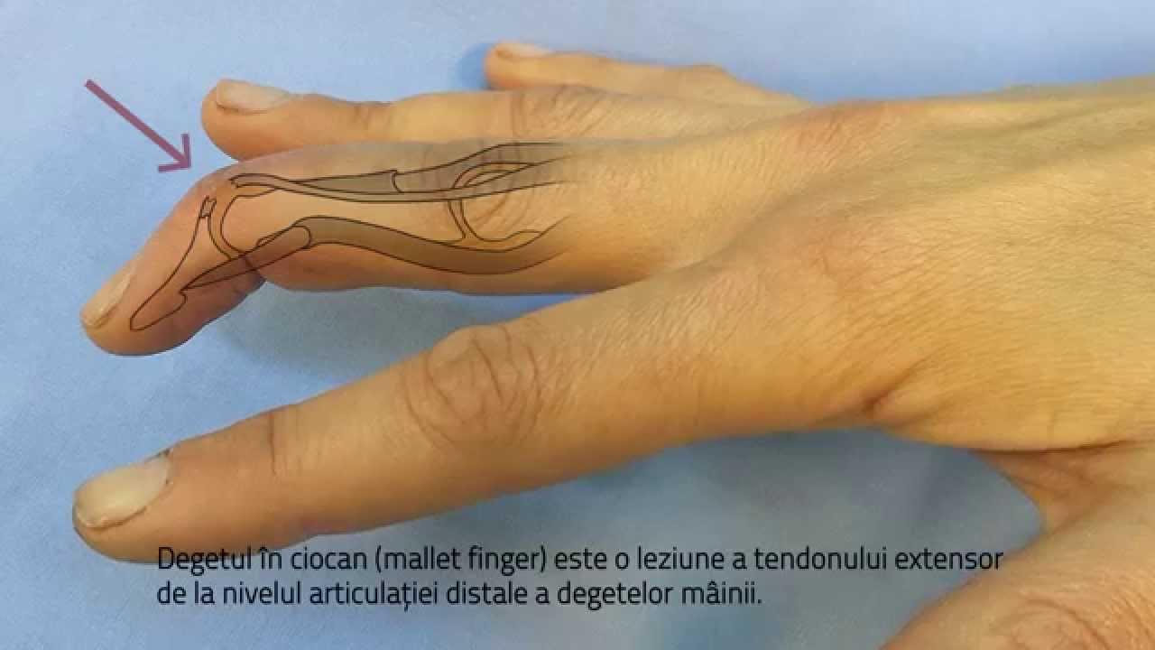 umflarea articulației degetului pe braț inflamația articulară a degetului mare