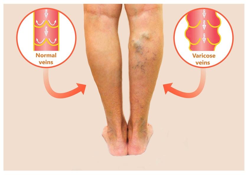 artroza articulației umărului 1-2 grade de tratament creme pentru durere în articulațiile genunchiului
